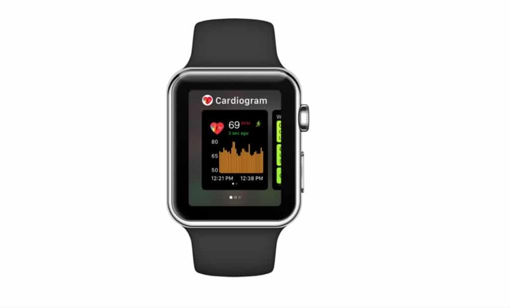 cardigram Apple watch diabète tension artérielle