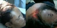KSPI Desak Polisi Penjarakan Management Voksel dan Ormas Pelaku Kekerasan