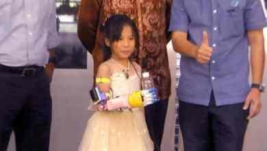 Photo of Sinar baharu kanak-kanak OKU dengan tangan prototapi elektronik 3D