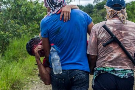 Jóven de Puerto Colombia Herido por bomba aturdidora disparada por el ESMAD el 15 de septiembre de 2014, durante un enfrentamiento con campesinos y fuerza pública a la altura del resguardo de Santa Rosa en el Putumayo. Actualmente permanece en estado de Coma en un hospital de Quito Ecuador, al que fue llevado por Trocha en un camino selvático que duro más de 8hrs.