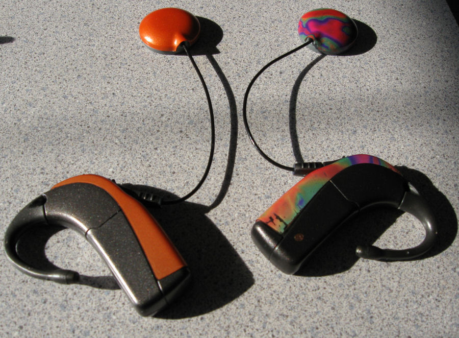 My colorful cochlear implant processors and headpieces