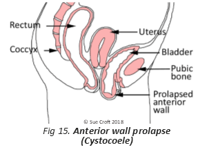 Prolapse and Pessaries – all blogs in one area (well most of them)
