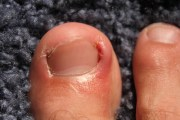 ingrown nails suffern podiatry