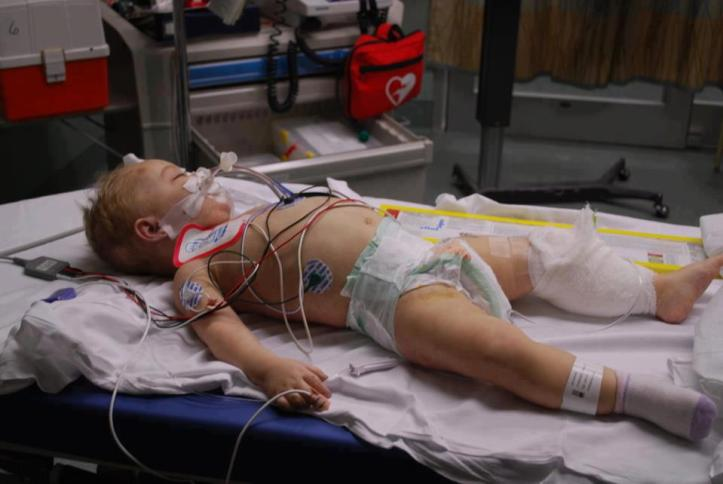 Alissa Guernsey's little body sprouting with wires and tubes from the life-saving efforts of the medical team
