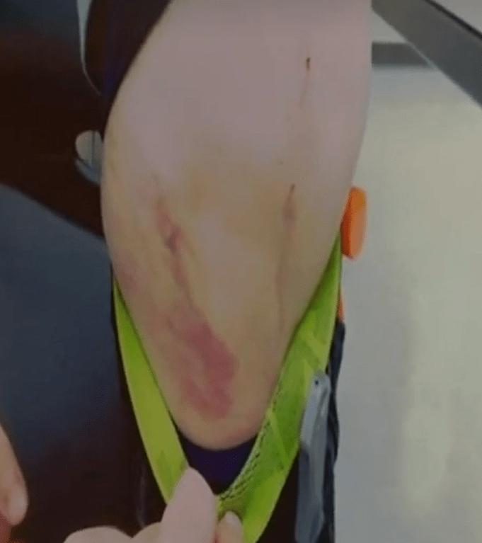 AJ Freund bruises