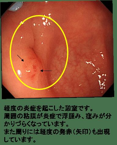 大腸憩室癥・憩室炎 | 巣鴨駅前胃腸內科クリニック