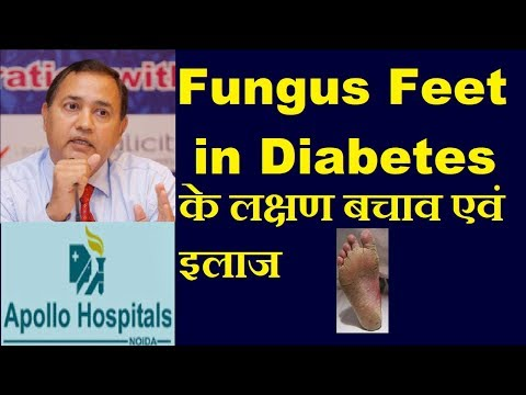 Itching & Smell in Feet in Diabetes is due to Fungus Infection Tinea Pedis Treatment Prevention