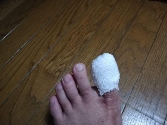 足の爪がはげた時の対応