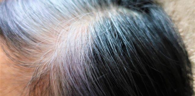 水素水で白髪予防と回復