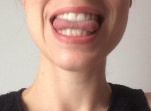langue retournée entre les dents