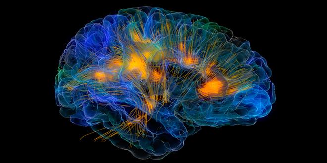 Yo versus mi cerebro