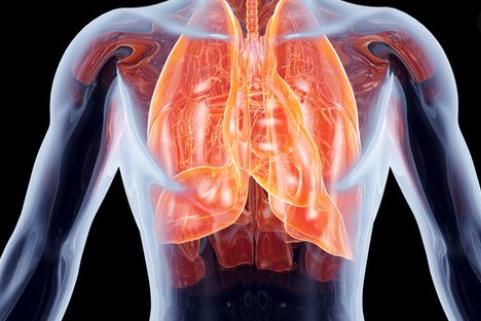 mengenal paru-paru basah