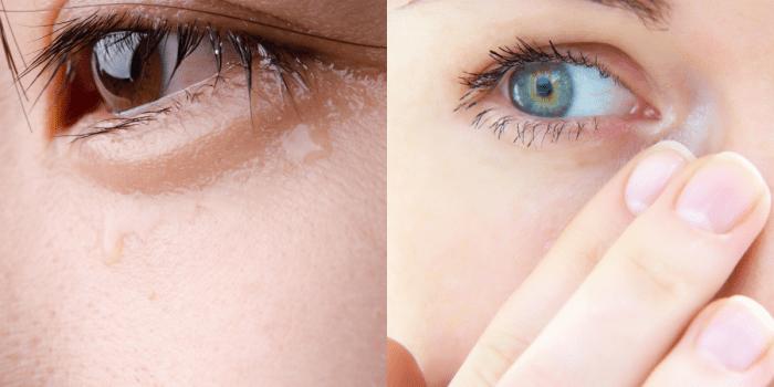 cara menghilangkan mata sembab karena menangis