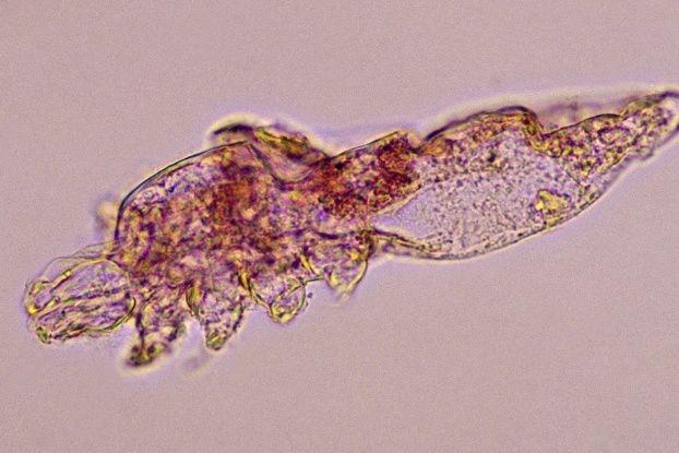 На одной реснице живет до 25 клещей