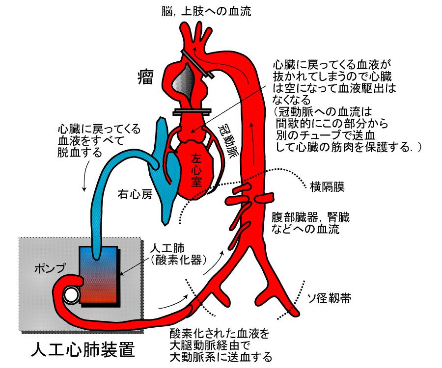大動脈疾患の治療について