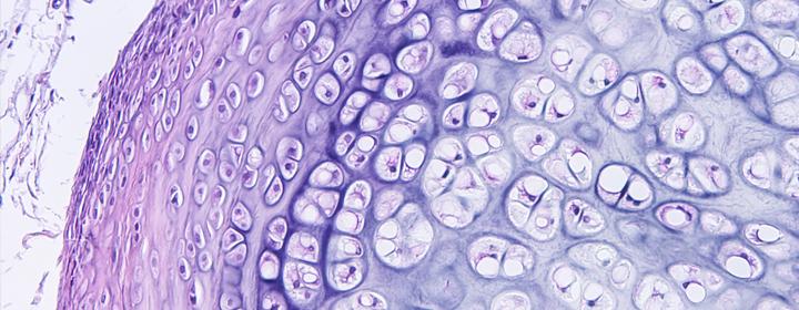 Alfa-liponsyre til diabetes og andre kroniske sygdomme