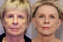 Dr Laris of Phoenix Skin will be speaking at the January Women's Exchange meeting about beauty breakthroughs, specifically mini facelifts, as part of our New year, New You theme. This picture is of an actual patient that has had the procedure.