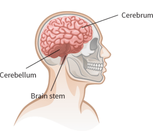 Understanding Concussions  What Happens When Brain Is