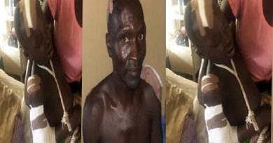 12-year-old boy hospitalised after he fought Fulani herdsmen who came to attack his father (photos)