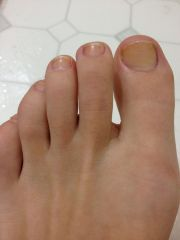 whiten nail toenails stained