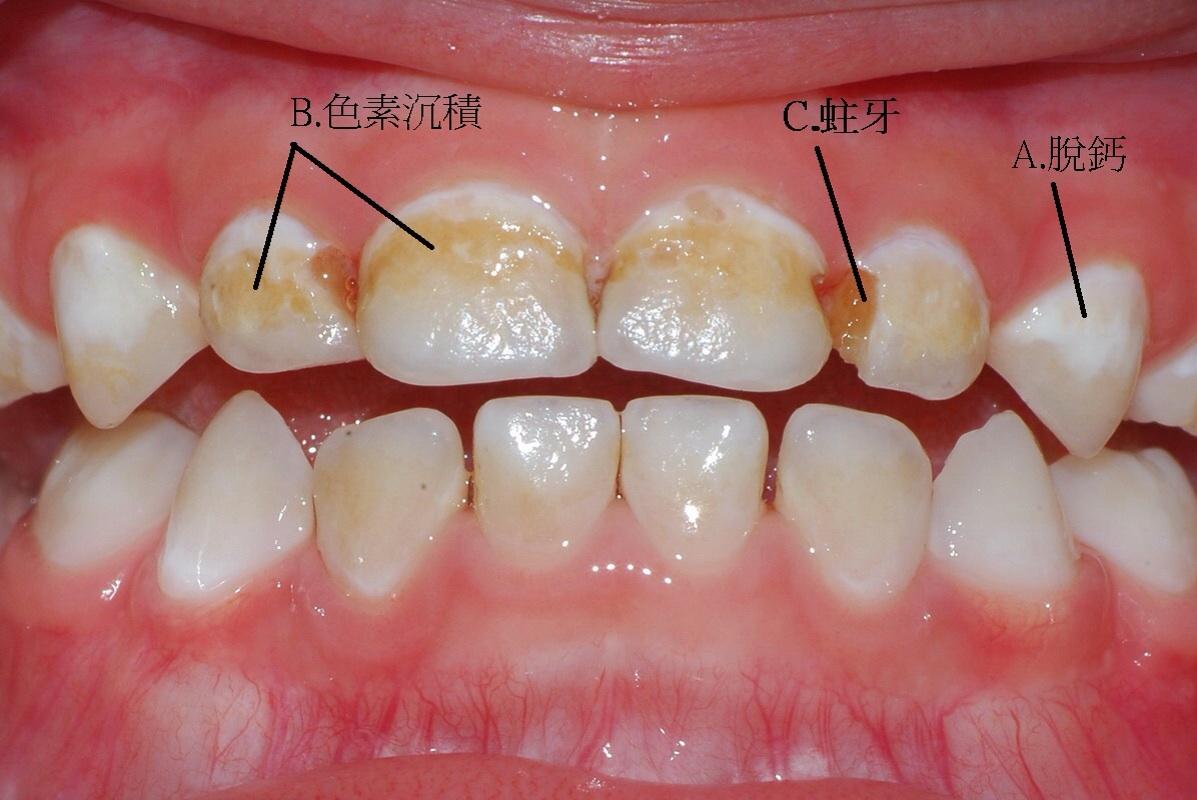牙齦萎縮 | [組圖+影片] 的最新詳盡資料** (必看!!) - www.go2tutor.com