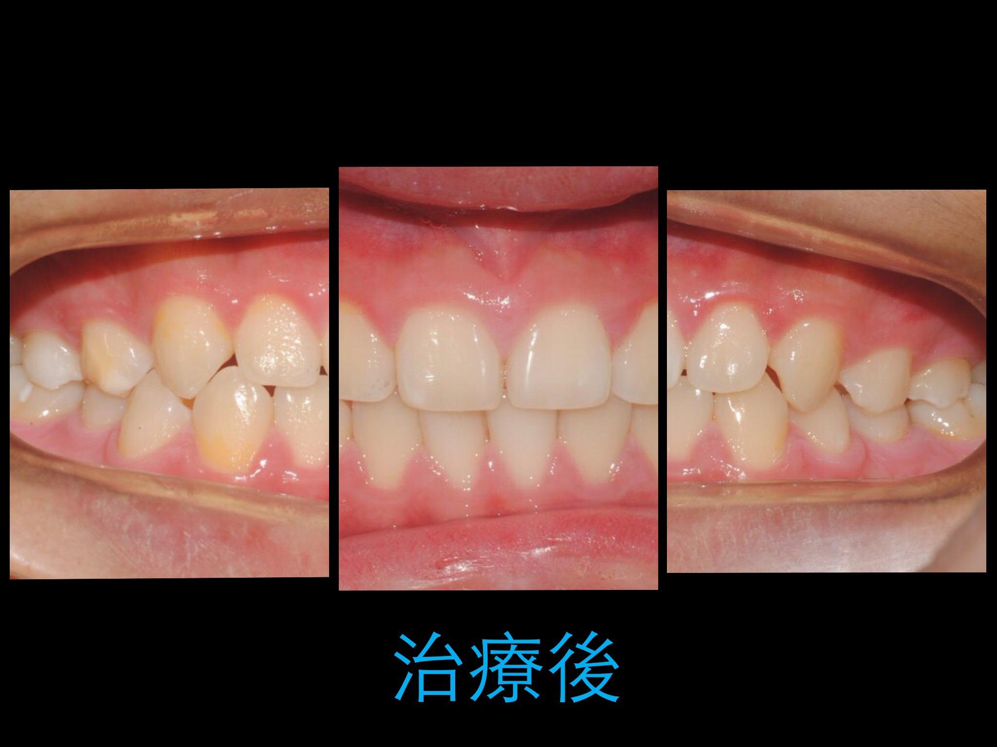 矯正的早期治療 | 小太陽牙醫診所
