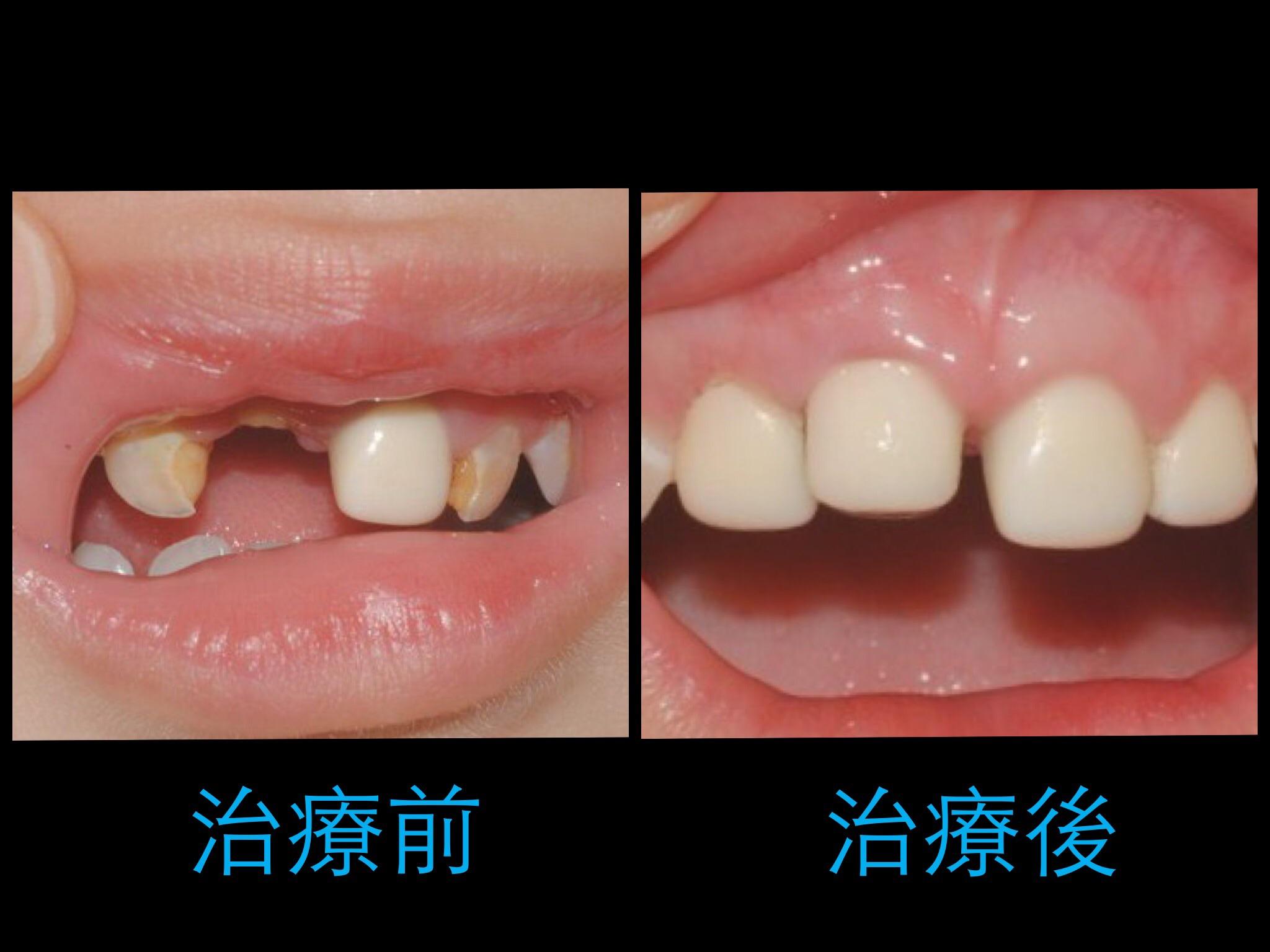 小太陽牙醫診所 - Page 6 of 16 - 兒童牙科 / 齒顎矯正 / 隱形矯正/ ............. 地址:臺北市大安區麗水街6-1號3F ...