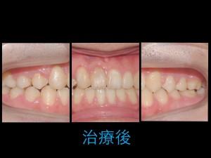 開咬的治療 - 小太陽牙醫診所小太陽牙醫診所