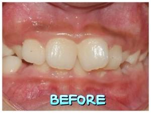 功能性矯正裝置 配戴的注意事項 - 小太陽牙醫診所小太陽牙醫診所