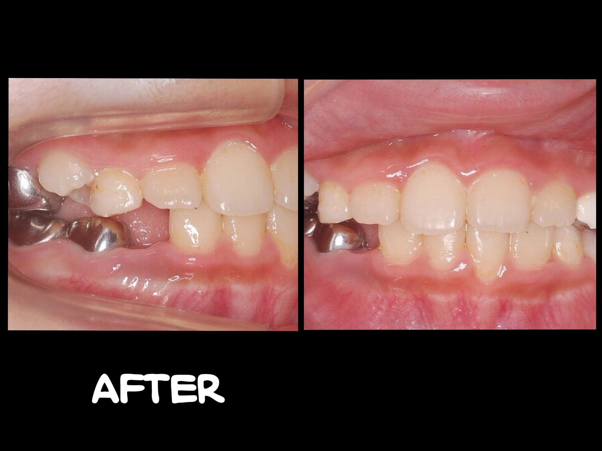 早期治療 前牙錯咬 - 小太陽牙醫診所小太陽牙醫診所