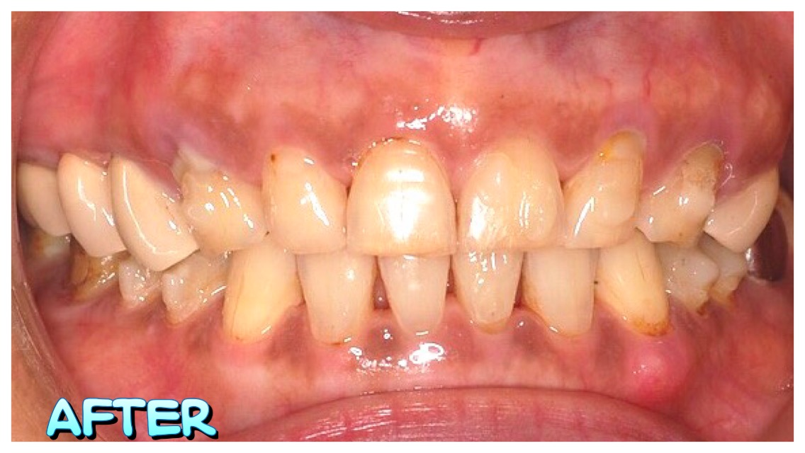IMG_4317   小太陽牙醫診所