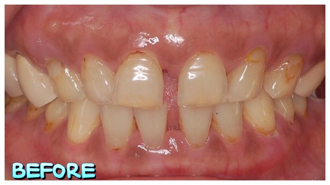 IMG_4324   小太陽牙醫診所