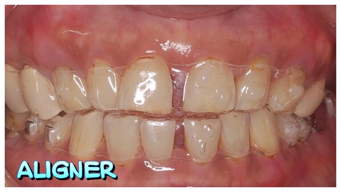 IMG_4327   小太陽牙醫診所