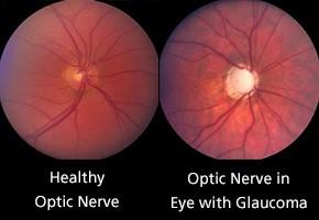 abnormal-optic-nerve