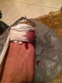 Dans toe bandaged up with blood trickling out of the bandage