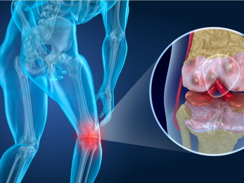 artroza, dureri, artroza genunchiului, gonartroza