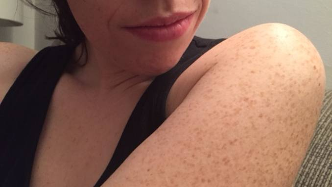 Essential Oils for Keratosis Pilaris: 5 Recipes That you Can Use