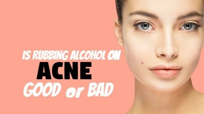 Isopropyl Alcohol for Acne: Why You Should Avoid Using Them