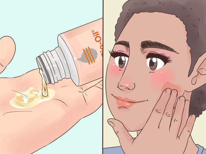 bio oil for face eczema