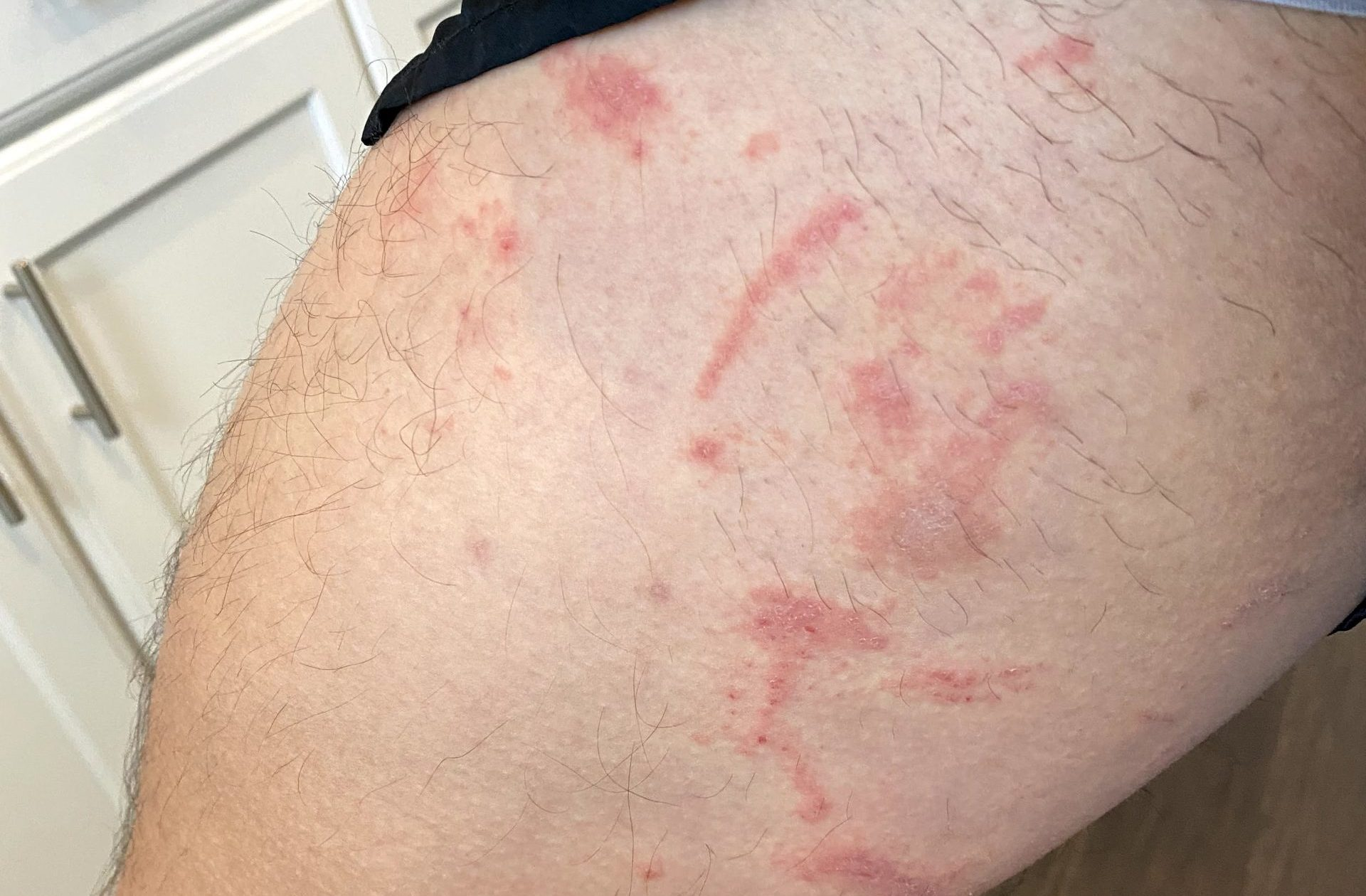 Read more about the article A Surprisingly Powerful Cure for Poison Ivy Rash
