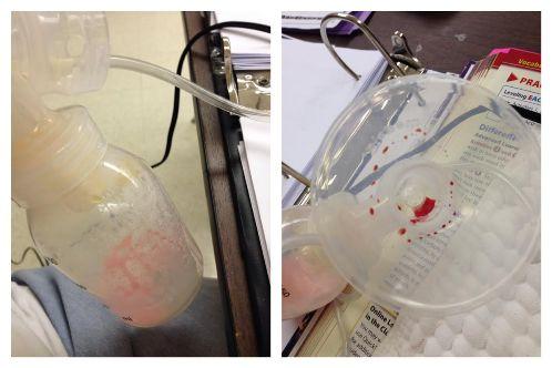 krv u izdojenom mleku