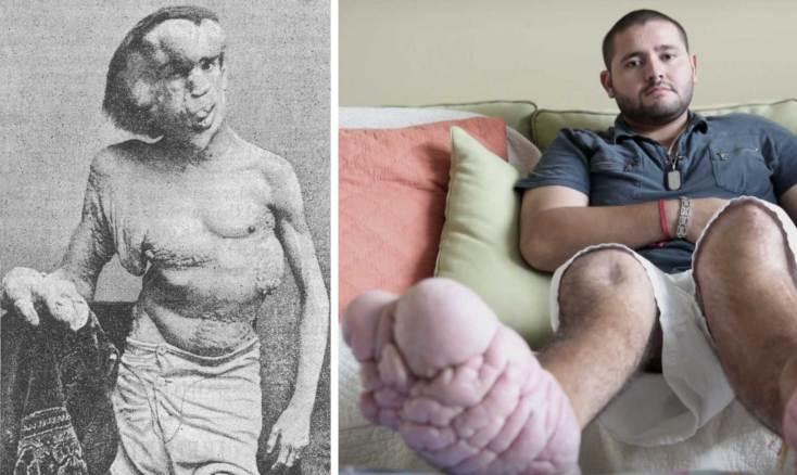 Resultado de imagen de Síndrome de Proteus
