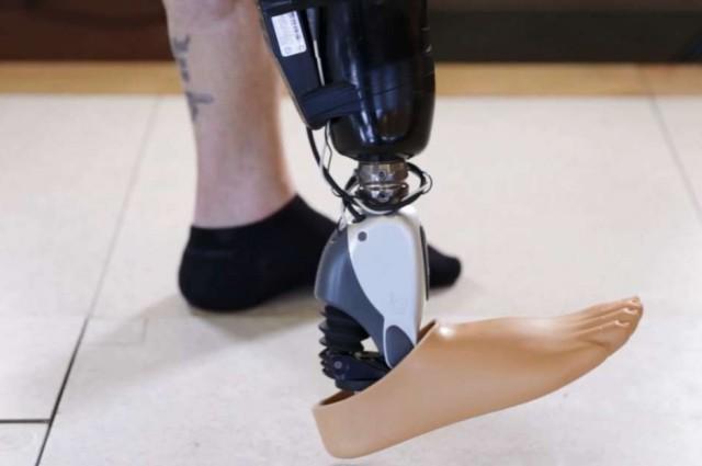 ossur prosthetics