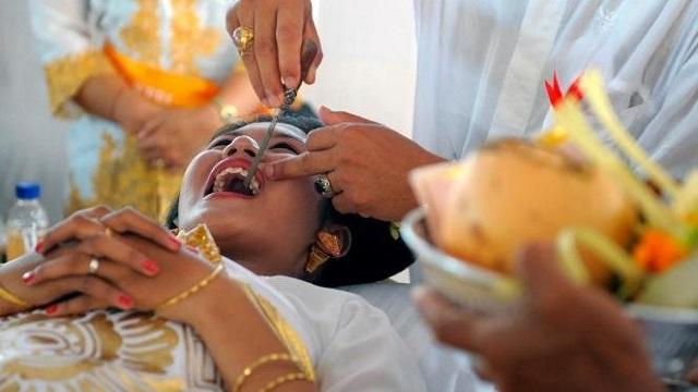 Bali'de yaşayan hindular sağlıklı dişlerini törpülüyorlar. Dişler insanlarda bulunan şehvet, cimrilik, nefret gibi duyguların kaynağı olarak görülüyor. Hatta insanların sinirlenince dişlerini sıkması, ya da göstermesi de bunun delili olarak öne sürülüyor.
