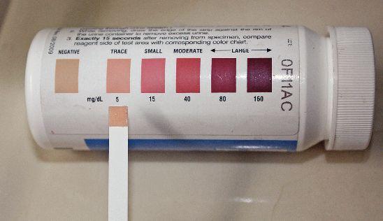 urine-ketone