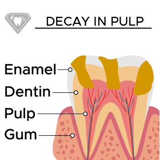 Decay spreads inside of the tooth's pulp.