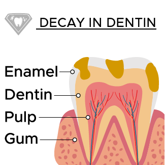 Decay spreads into the dentin layer on the tooth.