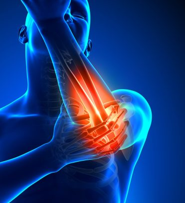 Tennis Elbow Pain. Sports Injury. Rehabilitation and Prevention. Super Soldier Project.