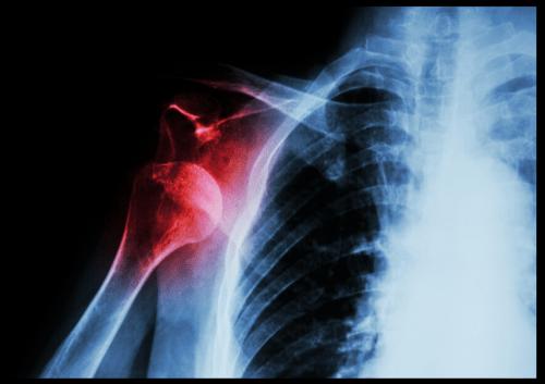 When Injury Strikes. Injury prevention. Injury treatment. PRICE for injury.