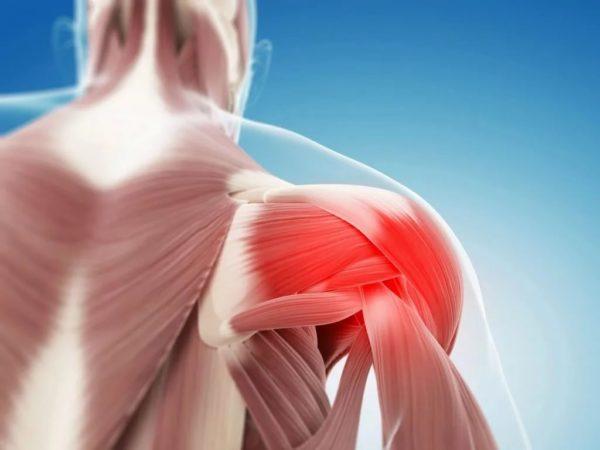 kenőcső nyaki és mellkasi osteochondrozishoz